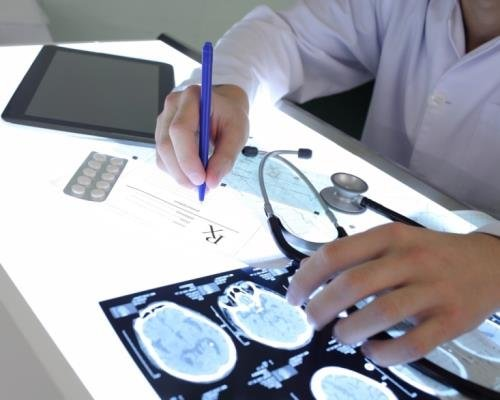 Doctor Checking Brain Scans CandianPharmacyMeds.com